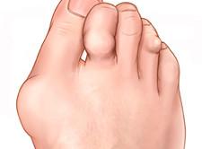 Punktid olale artroosi ravis AROMAMASLA liigeste ravi