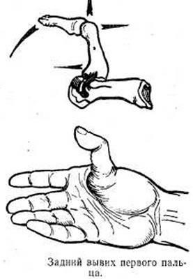 Liigeste tootlemine vastavalt MalySheva meetodile Tugevad valuvaigistid valu liigeste valu