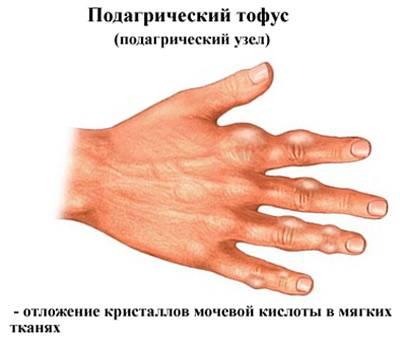 Liigeste tootlemine vastavalt MalySheva meetodile Artriidi ja artrohi ravi valismaal
