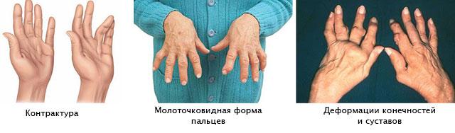 Magusad harjad haiget liigesed Sustavi turse diagnoos