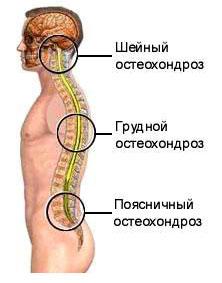 Alumise loualuu sailitamise artriit
