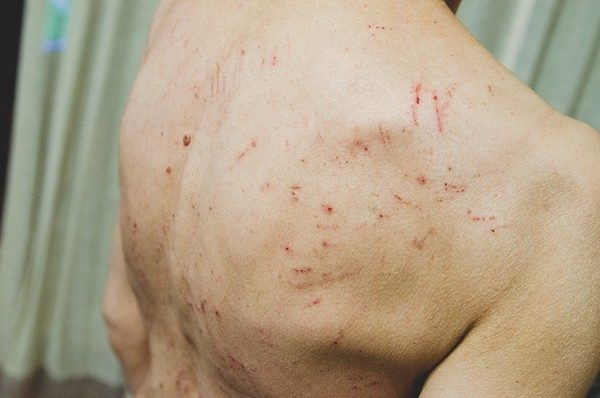 Valu ja kuunarnukite liigesed Artroosi poikliigendites