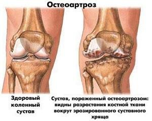 Meetodid arthrisa ravis Ayurveda valu Justov