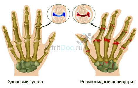 Meetodid liigeste haiguste arahoidmiseks Randme liigeste paisub