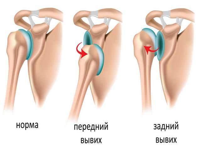 Valu kaela ja ola liigesevalu