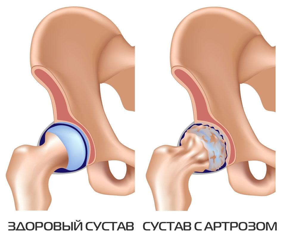 Millised on urdid artroosi raviks Lihvitud liigeste ravi poletik