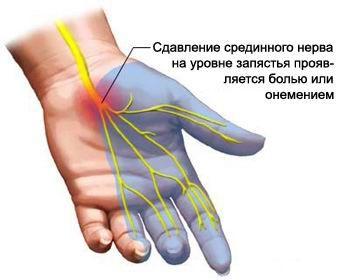 Nao liigendi artriit