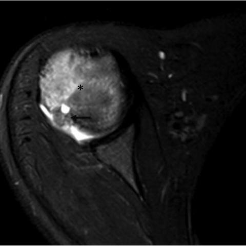 Osteoartriidi olaliigese 1 kraadiravi rakud Eemaldage valu uhendite salvi