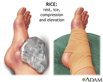 Pahkluu liigese turse Arthroosi jala pohjused ja ravi