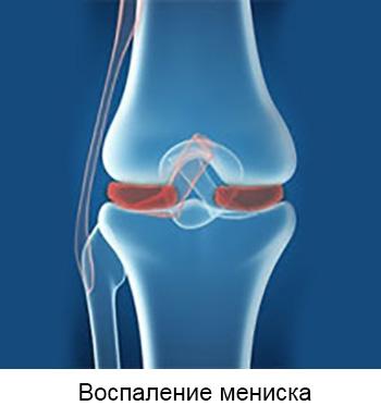 Poletik artroosi ravi