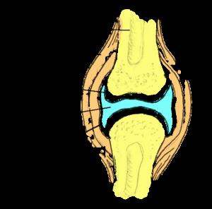 Liigeste koor Kondroksiidi liigeste valu salvi