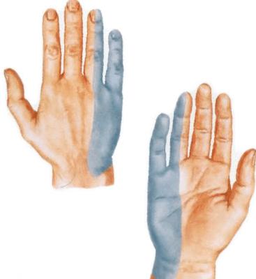 Randmevalu liigeste haigused