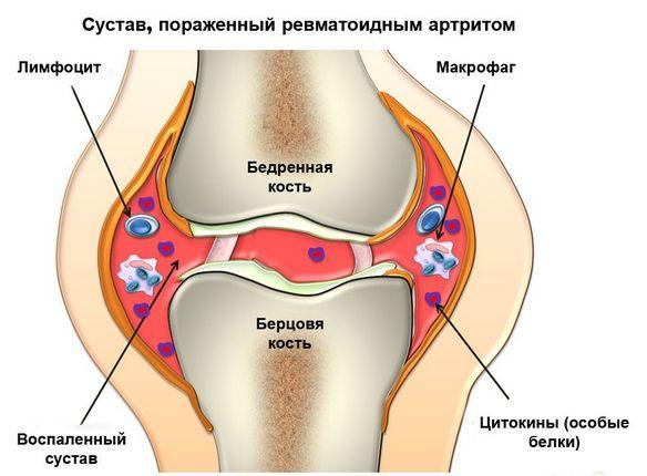 Geelid liigeste valu jaoks