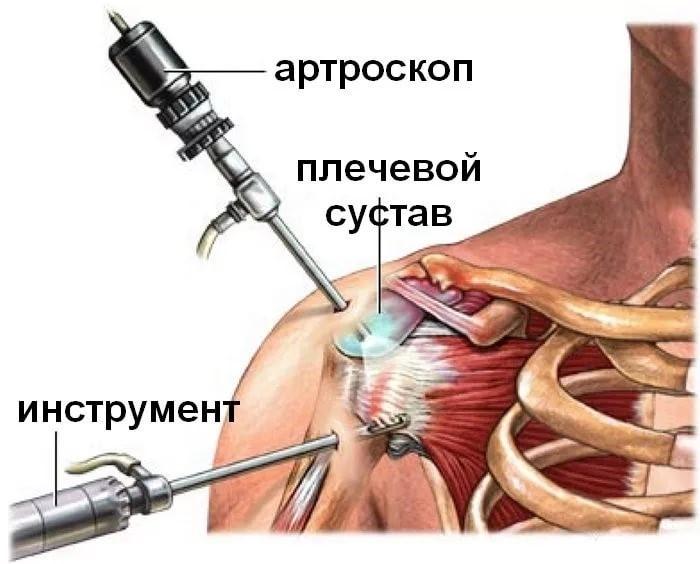 Risti ola liigese anesteesiale Liigeste meditsiini artriit