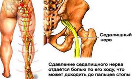 Mis tooted on liigeste artroosis kasulikud Trauma liigeste ravi