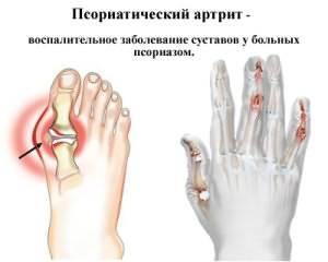 Salv sormeotste liigeste raviks Tugev valu liigestes ja tagasi