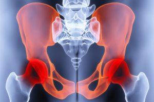 Solvestab ravi haiget Olaliigese artroosi esimesed margid