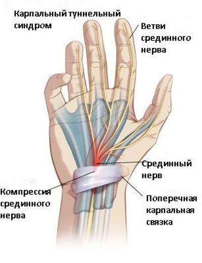 Sorme tuimus artriidi