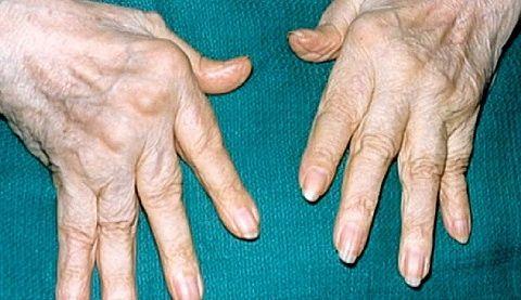 Mida ravida valu liigeste ulevaateid Butakova valu liigestes