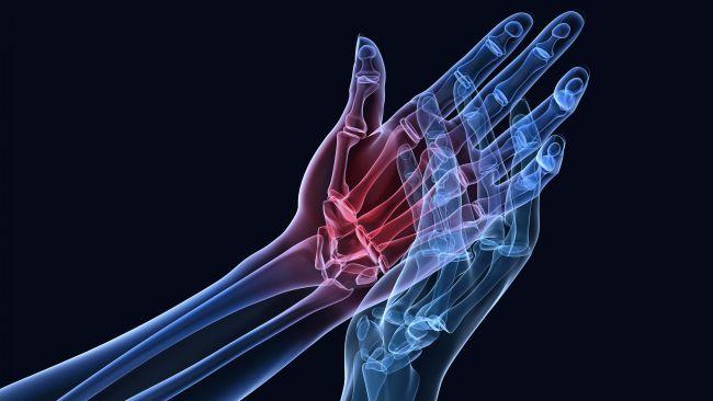 Kuidas ravida valu kate ja jalgade liigestes Valu kuunarnuki liigeses annab ola ravi
