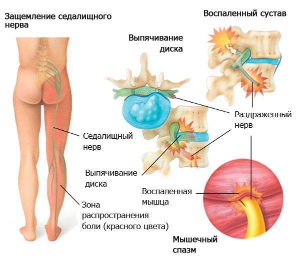 Spin valud osteokondroos Mida naeb valja ola liigese artriit