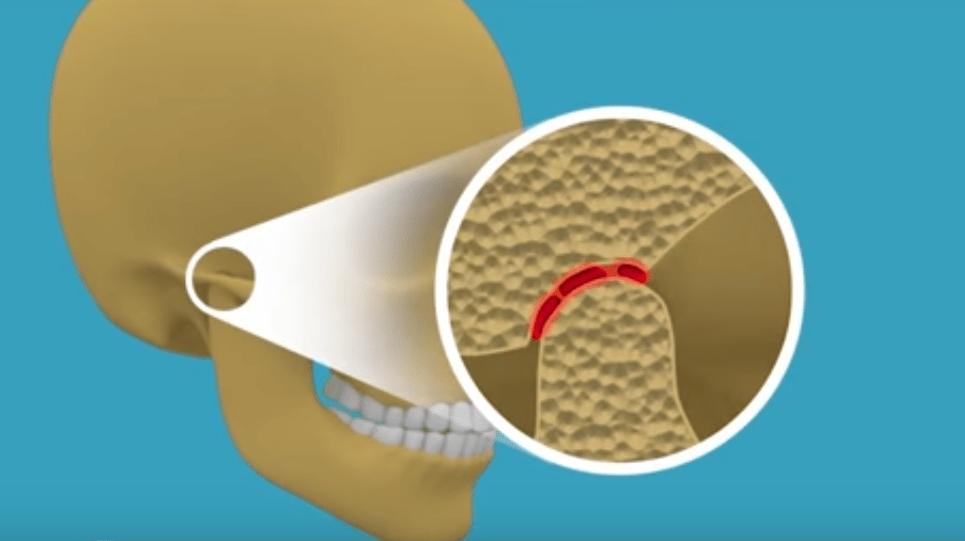 suu ei avane liigese valus
