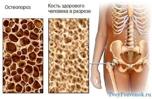 NII haigused liigeste