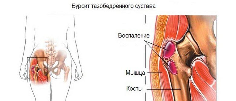 terav liigesevalu ravi tosine valu jalgade liigestes kui ravida