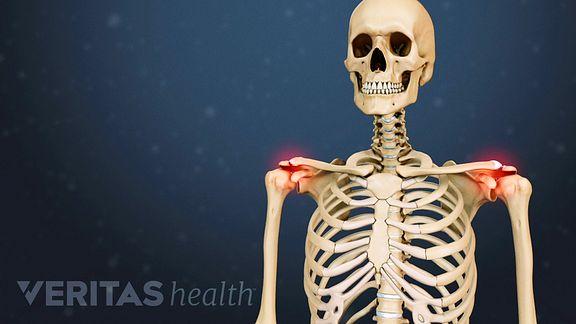 Laste artroosi ravi Liigeste poletiku raviks