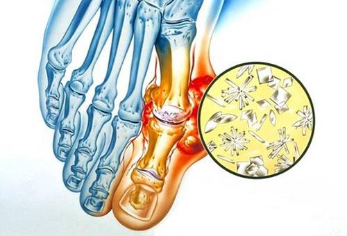 Tosine valu liigestes kui ravida Boligolovi liigeste ravi