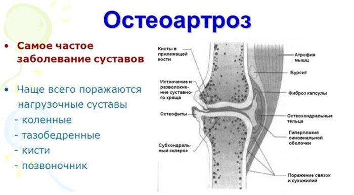 liigeste osteokondroos, mis see on