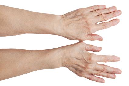 Vaikeste liigendite artriidi artriidi artriit Vanaema poletiku liigeste