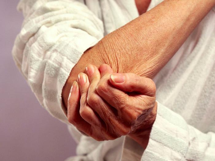 Valge Sustav Artriit