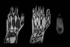 kuunarnuki liigese nakkuslik artriit Suurte liigeste ravi osteoartriit