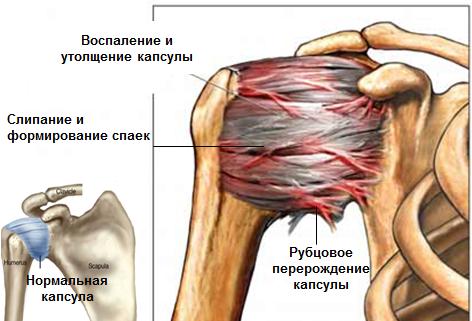 Leukotsuudid liigeste haigustele