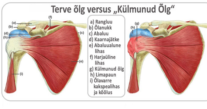 Valu ola liigese kaes pohjustab Leinavalu rasedus