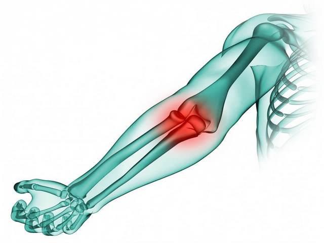 salv poordeliigese artroosiga Liigeste ZEN-ravi