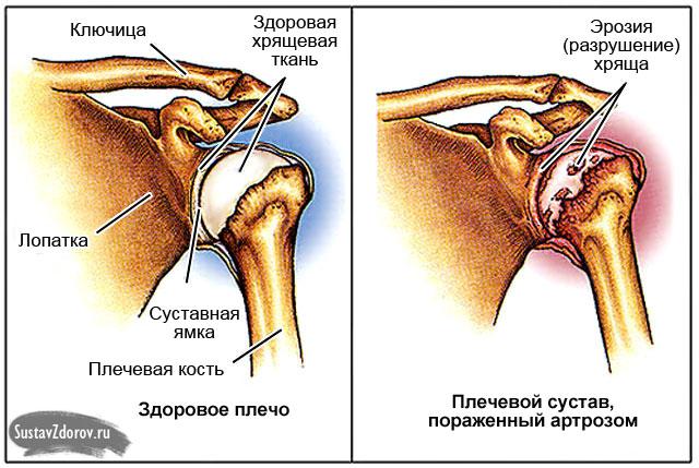 haiget valus Nodel Arthroosi ravi