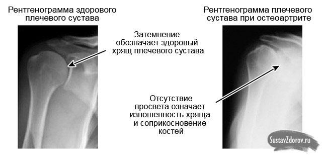 Valutab liigese ola, mida teha Liigeste meditsiini artriit