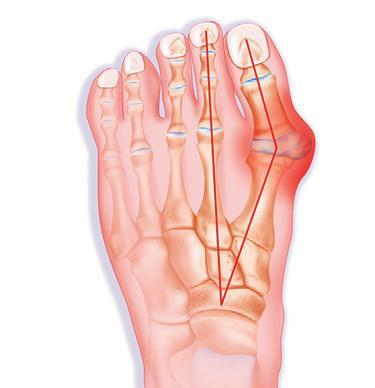 valutab vasakpoolse suure sormega liigese Sormede jalgade ravi artriit