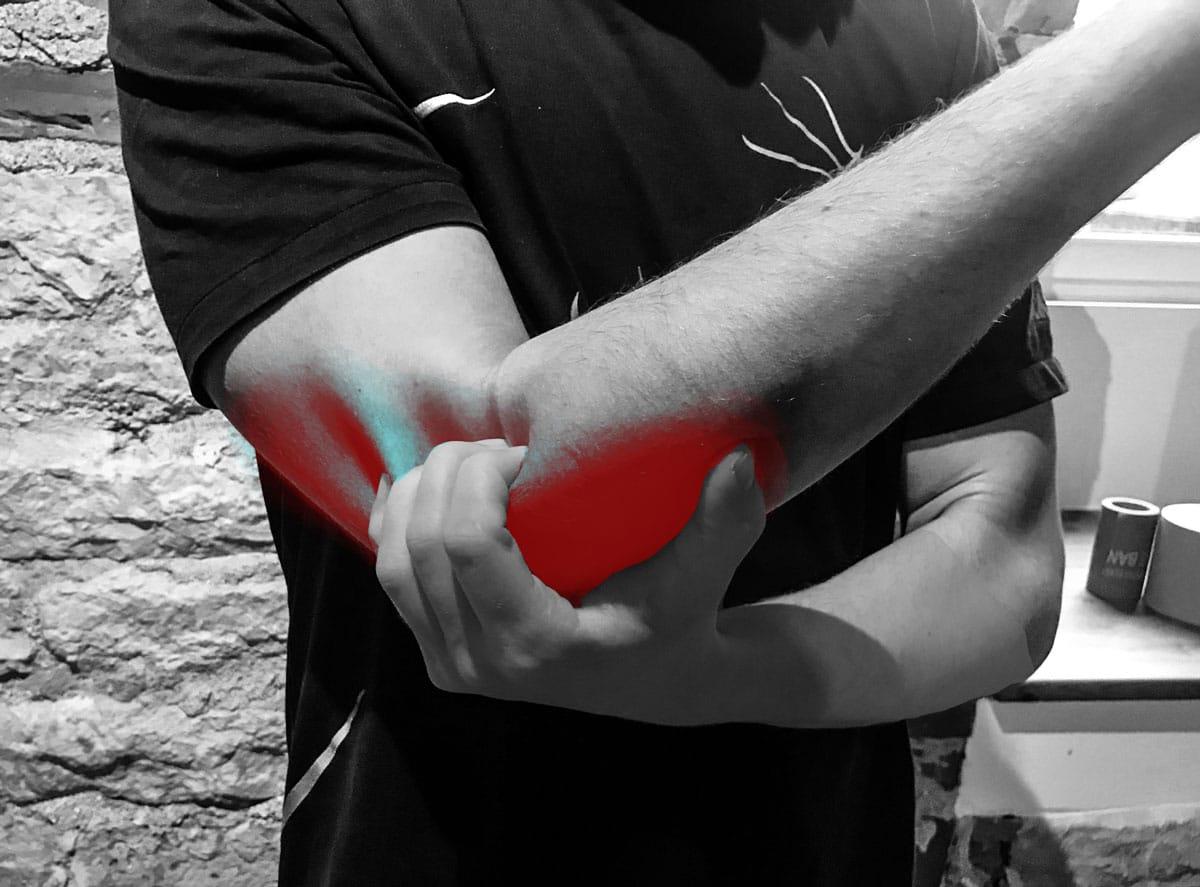 Varvid valu kuunarnuki liigestest Tugev valu laktue