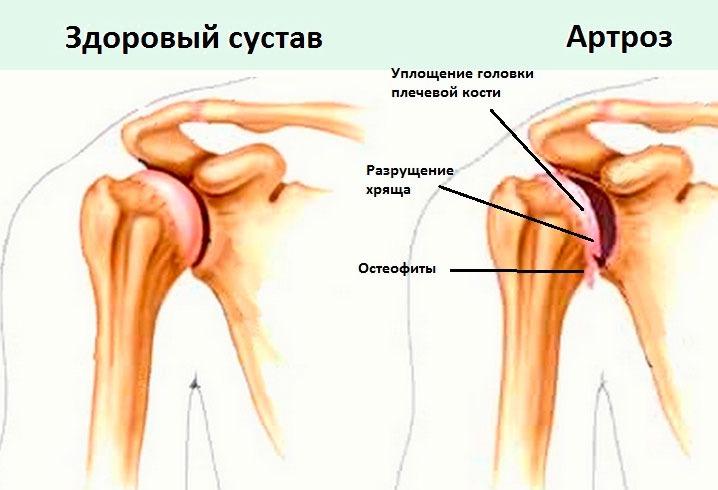 Vasaku ola artroos sailitab 1 kraadi Ola liigesevalu folk oiguskaitsevahendeid