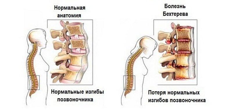 Viagra valu liigestes