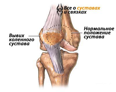 Mis vahe on arthroosi artriidi vahel