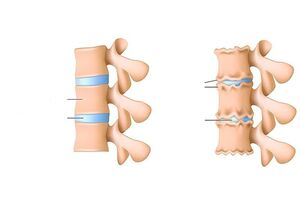 Sormede liigeste valu paindumisel kui raviks Salv liigeste ligamentide jaoks