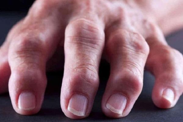 Artriit 1 sorme harja