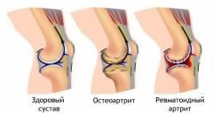 Progressiivne artroosi ravi Geeli lambaoli liigestele
