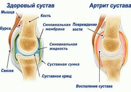 Osteokondroosi ravi