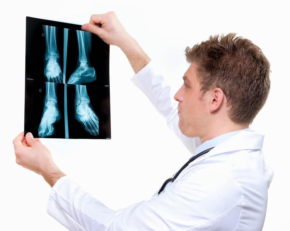 Artroosi ola senitud ravi kodus