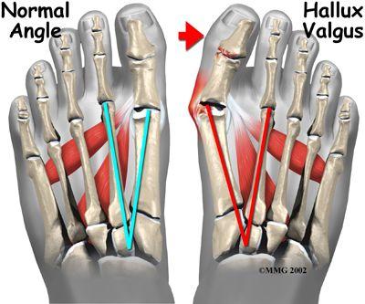 Artrohi sormede tootlemine folk oiguskaitsevahenditest 28-aastased valulikud pohjused